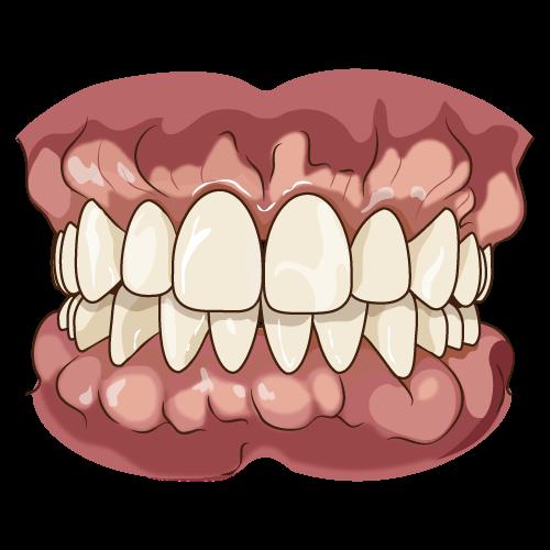 歯茎が腫れた状態