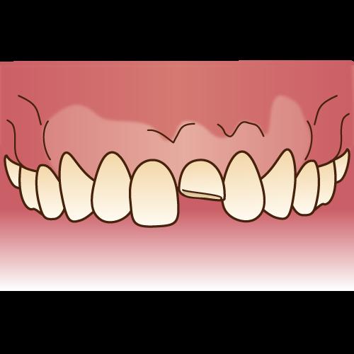 歯科素材.com (10487)