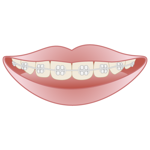 目立たない装置|イラストNo.658【歯科素材.com】 (10668)