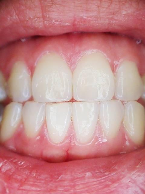 無料の写真: 歯, 口, 歯科, 歯科医, 唇, 経口, ガム, リップ - Pixabayの無料画像 - 887338 (10781)