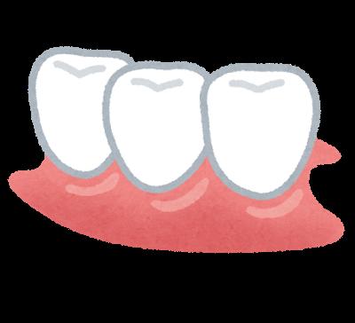 部分入れ歯のイラスト | かわいいフリー素材集 いらすとや (10879)