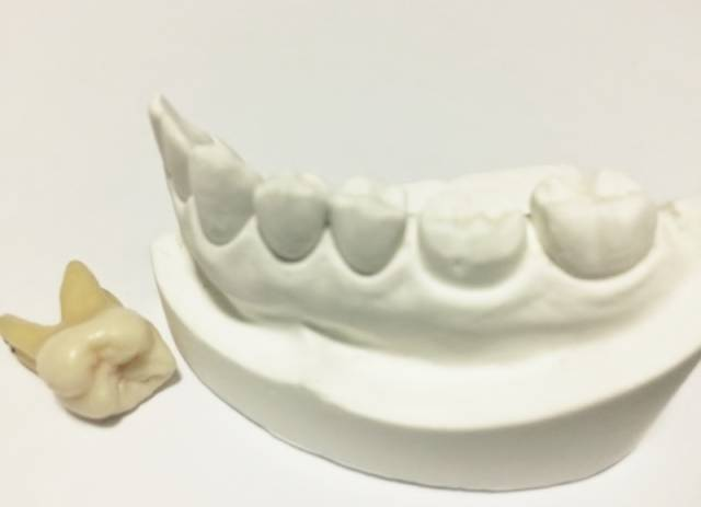 歯の健康|写真素材なら「写真AC」無料(フリー)ダウンロードOK (11535)
