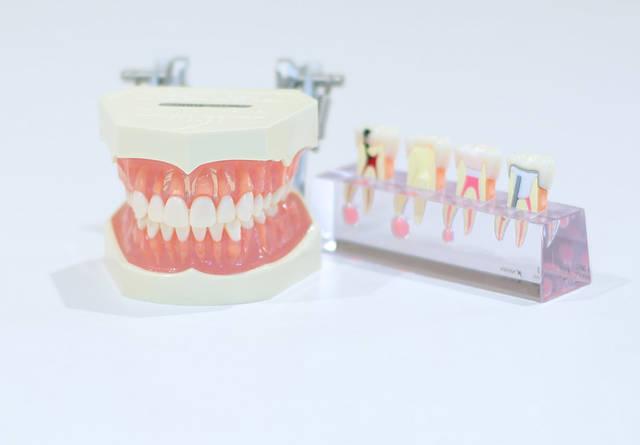 [フリー写真] 歯型模型でアハ体験 -  GAHAG | 著作権フリー写真・イラスト素材集 (11596)