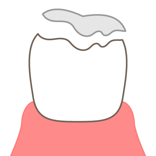 噛み合わせの影響:詰め物、かぶせ物が取れやすくなる|イラストNo.2150【歯科素材.com】 (11669)