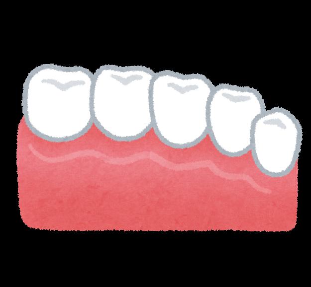 セラミックの歯のイラスト(歯の治療) | かわいいフリー素材集 いらすとや (11685)
