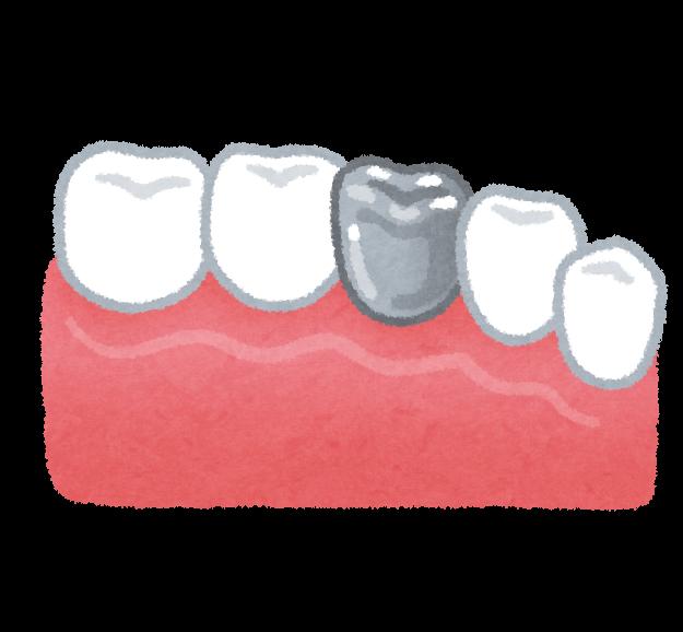 銀歯のイラスト(歯の治療) | かわいいフリー素材集 いらすとや (11686)