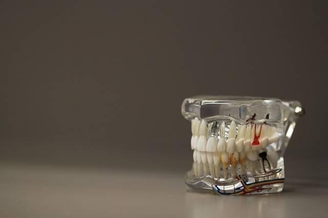 Free photo: Dentistry, Dentals, Teeth, Model - Free Image on Pixabay - 668191 (1342)