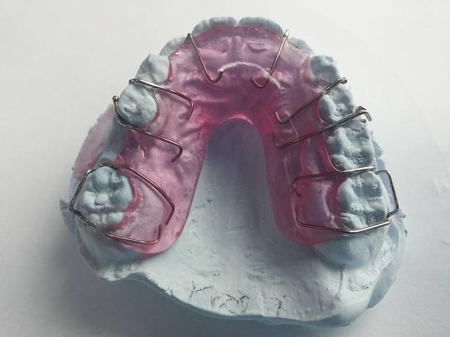 Free photo: Dentist, Orthodontics, Dental Rail - Free Image on Pixabay - 542264 (1532)
