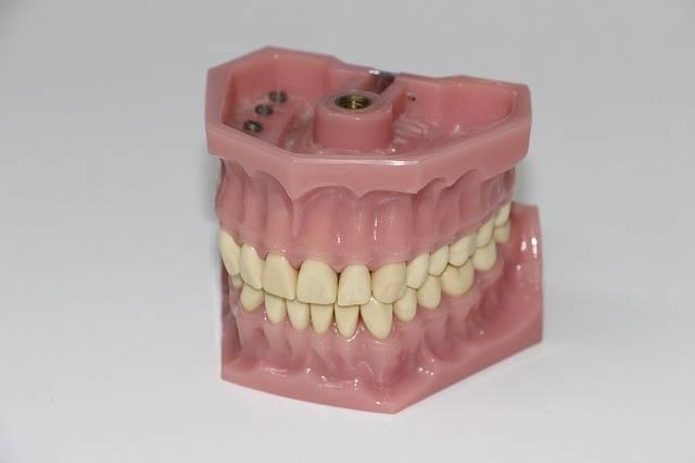 Free photo: Dentures, Art Dentures - Free Image on Pixabay - 1514697 (5405)