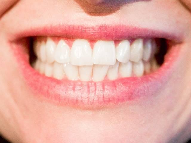 Free photo: Teeth, Dentist, Dental, Mouth - Free Image on Pixabay - 1652976 (6234)