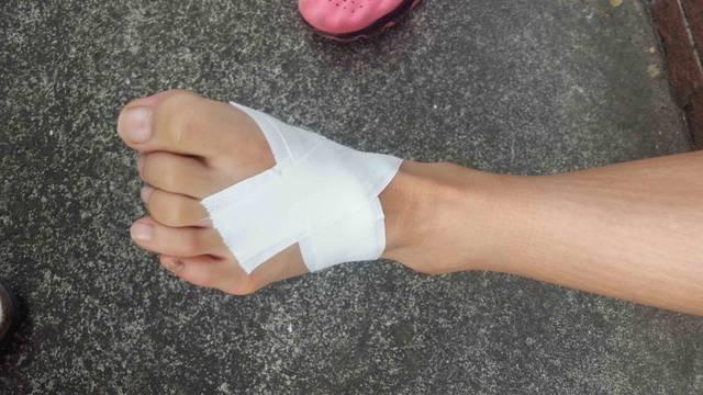 足部中足骨テーピング例