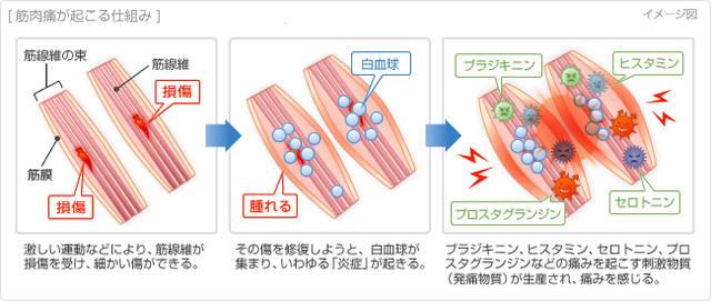 筋線維の損傷に伴う炎症説イメージ図