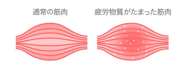 疲労物質が溜まった状態 イメージ図