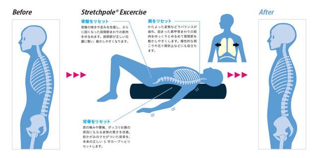 ストレッチポール®が猫背に効果的な理由と特選エクササイズ (35902)