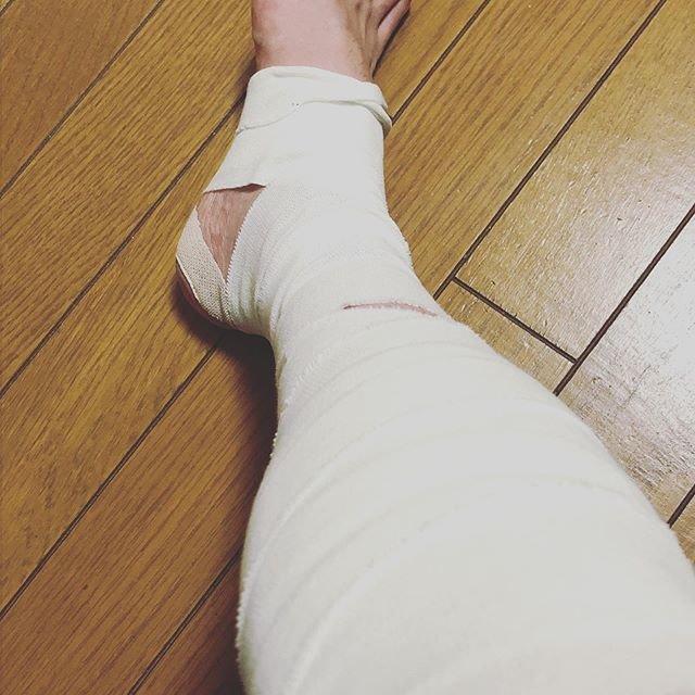 """齋藤 翔悟 on Instagram: """"やってしまいました。 仕事中に肉離れ。 あまり重たくない物を持ち上げた時に張ってしまいました。。 社内を移動するときは上司に車椅子ドライブされました。  スポーツは3週間ドクターストップです。  #肉離れ #pulledmuscle  #全治3週間…"""" (87243)"""