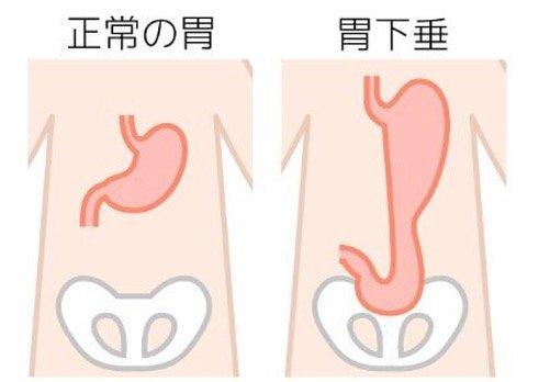 """キハラケンタロウ・桃壽(トウジュ)〜長崎 on Instagram: """"下腹部のポッコリお腹の原因でもある胃下垂 特に女性の悩みの一つです。  経絡(ケイラク)刺激の施術でも下垂した臓器を引き上げる作用の経絡を刺激する事で 改善することも少なくありません。  自分で出来る胃下垂への 対処法は至ってカンタン。  立った姿勢で腕をビン!と…"""" (126249)"""