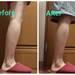 もうすぐ素足の季節!ズボラなアラサー女子が「脚やせメソッド」10日間に挑戦!【後編】