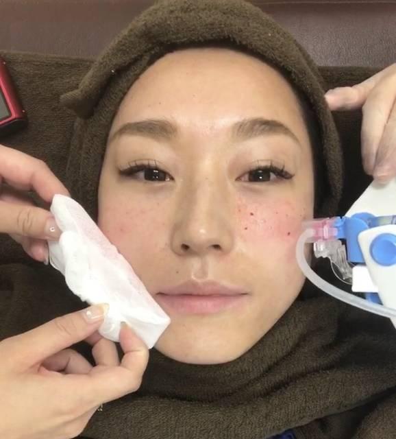"""肌のハリ&ツヤがアップ!話題の""""水光注射""""をリアル体験レポ!"""