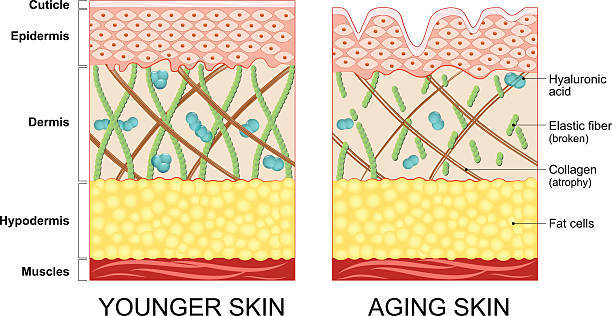 左が若いヒトのハリがある肌、右が老化が始まったハリを失...