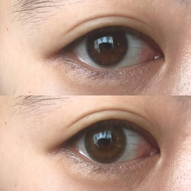 上/Before  下/after