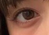 ワントーン明るい瞳になりました!