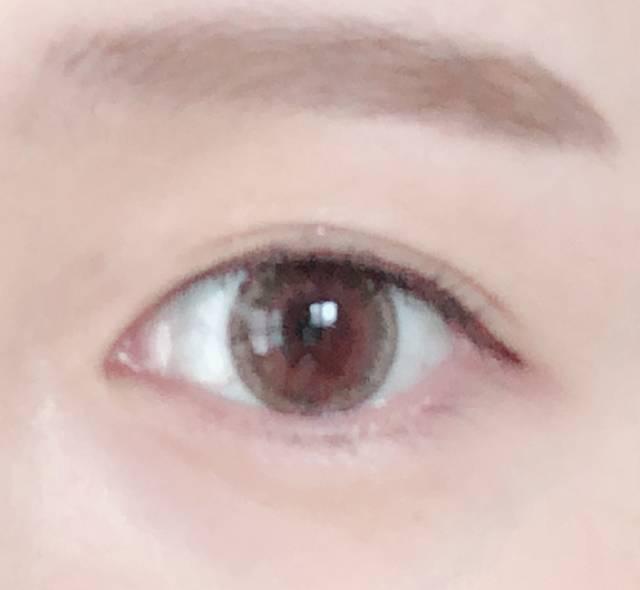 瞳の明度が上がって透明感が出ました♡