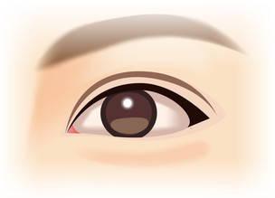 目尻を下げるたれ目形成(グラマラスライン)