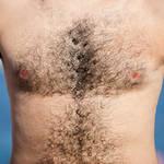 【毛深いと将来ハゲる】は本当か?男性ホルモンと薄毛の関係