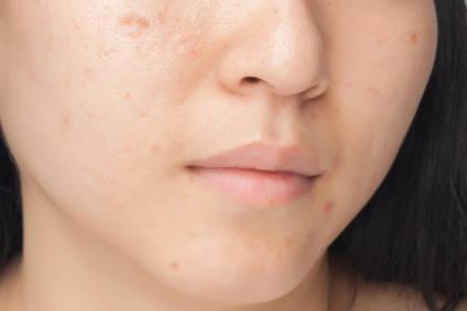 頬の肌荒れとあごの肌荒れ、その原因の違いとははいったい何?  - 美肌総合研究所 (1757)