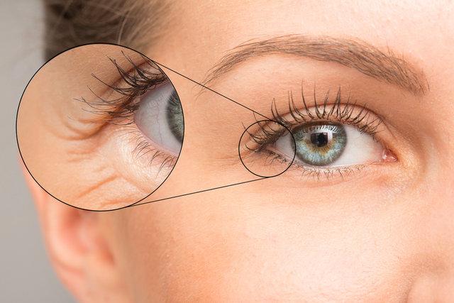 目元で変わる!顔のリフトアップは目元のたるみから。エステティシャン解説