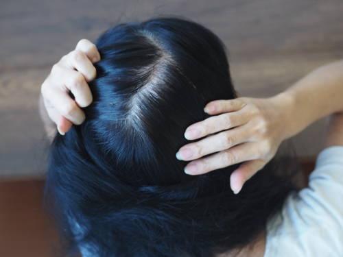 白髪の原因とおすすめな白髪予防シャンプー3選