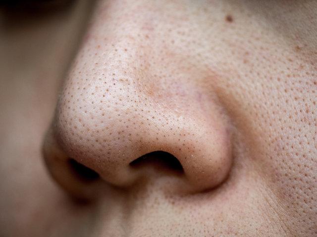 もしかして間違っているかも?鼻の角栓の取り方・黒ずみ除去方法を徹底解説