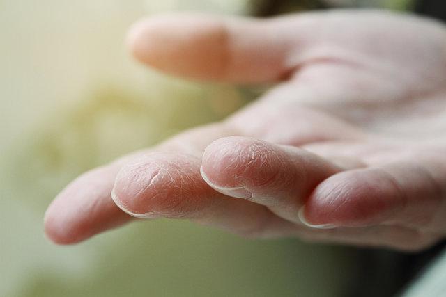 【冬の乾燥対策】お肌の乾燥を防ぐ方法を徹底解説