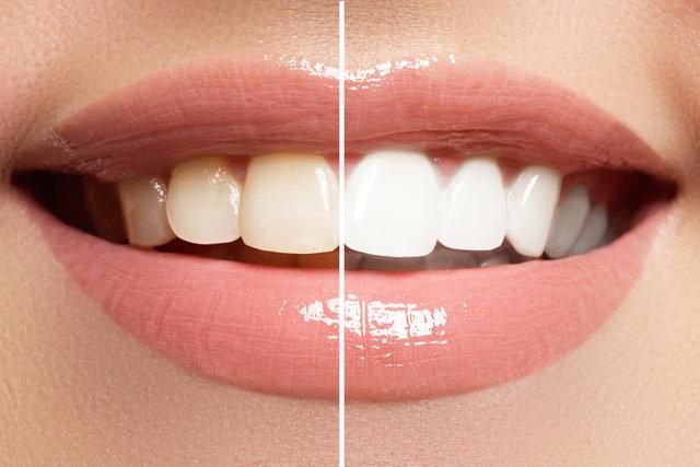 自宅でできるホワイトニング!芸能人みたいな真っ白な歯になるためには?