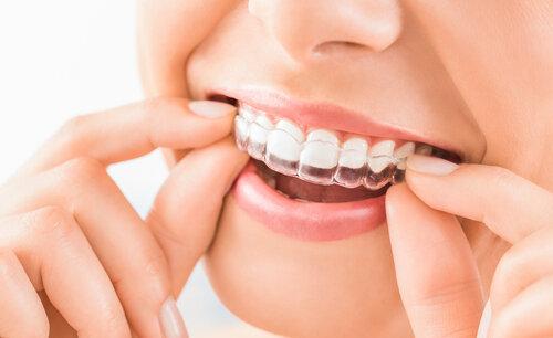 歯列矯正についてただなわデンタルクリニック祐天寺の院長にインタビュー