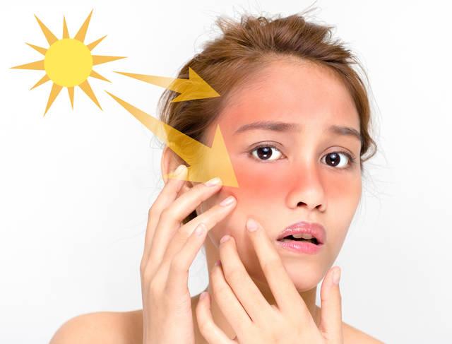 紫外線 くすみ 原因