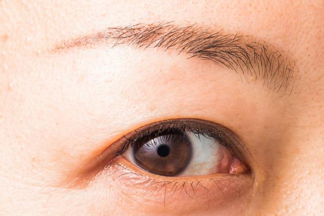 目の下のたるみの原因 筋力