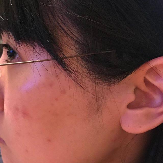 """ニキビ.肌荒れ記録 on Instagram: """"2018年2月23日 今日の写真はしっかり撮ってみた、肌汚くて見てるとつらい 芯のあるニキビは少ないけど、なくなりかけのニキビとか、赤みとか、なかなかなくなりません 髪の毛が当たってるのもよくないんだろうなー…どうしようもないけど……"""" (52710)"""