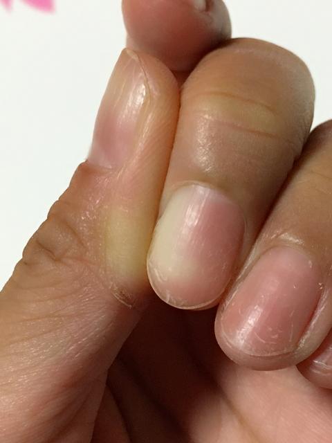 ◆指を固定します◆