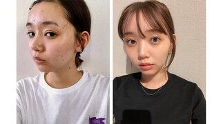 江野沢愛美がニキビに悩んだ過去を初告白、肌荒れ写真公開にも反響「勇気がいることなのに」「需要ありまくり」