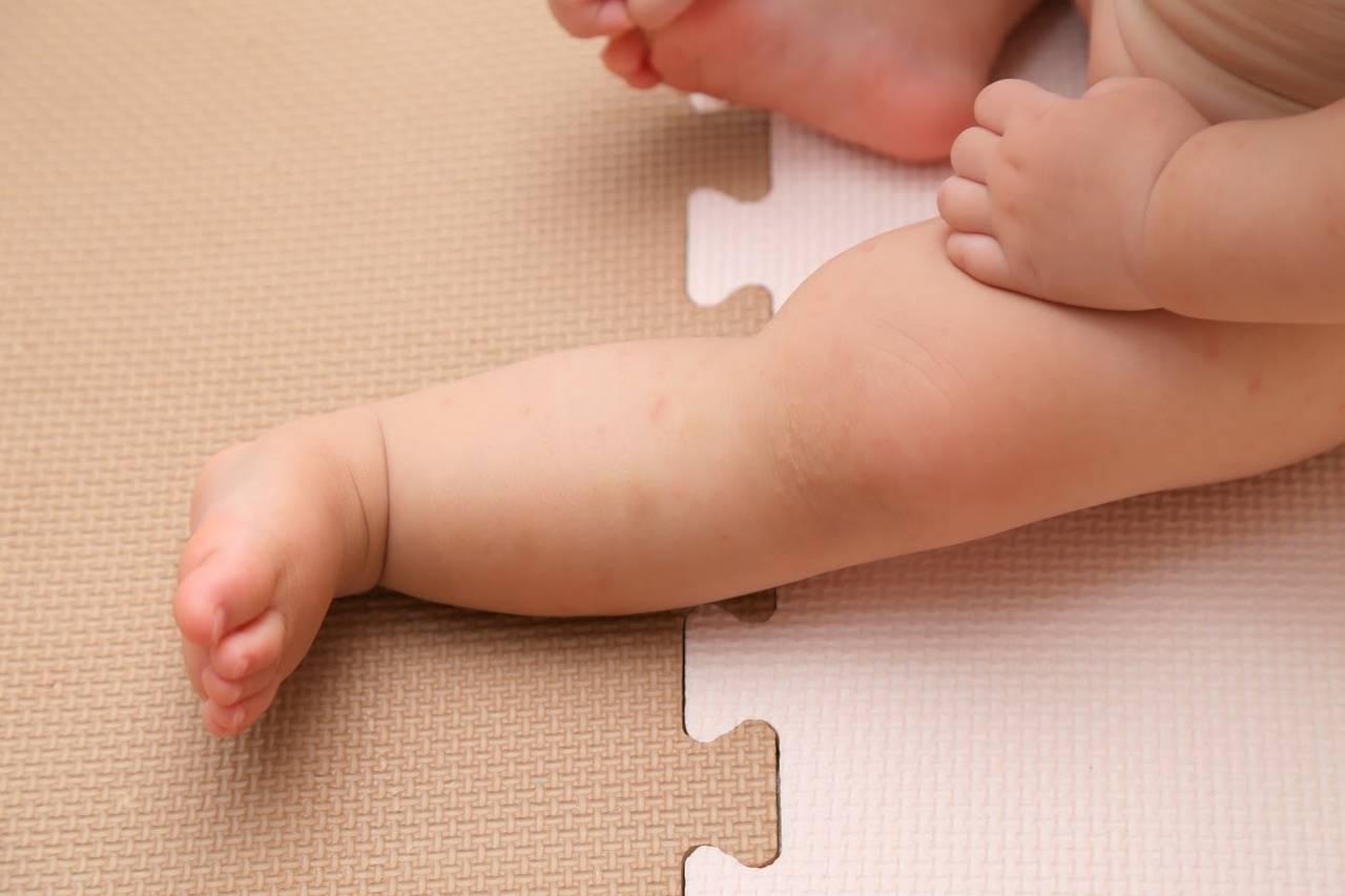 赤ちゃんは冬にあせもができる!原因やあせもができたときの対処法