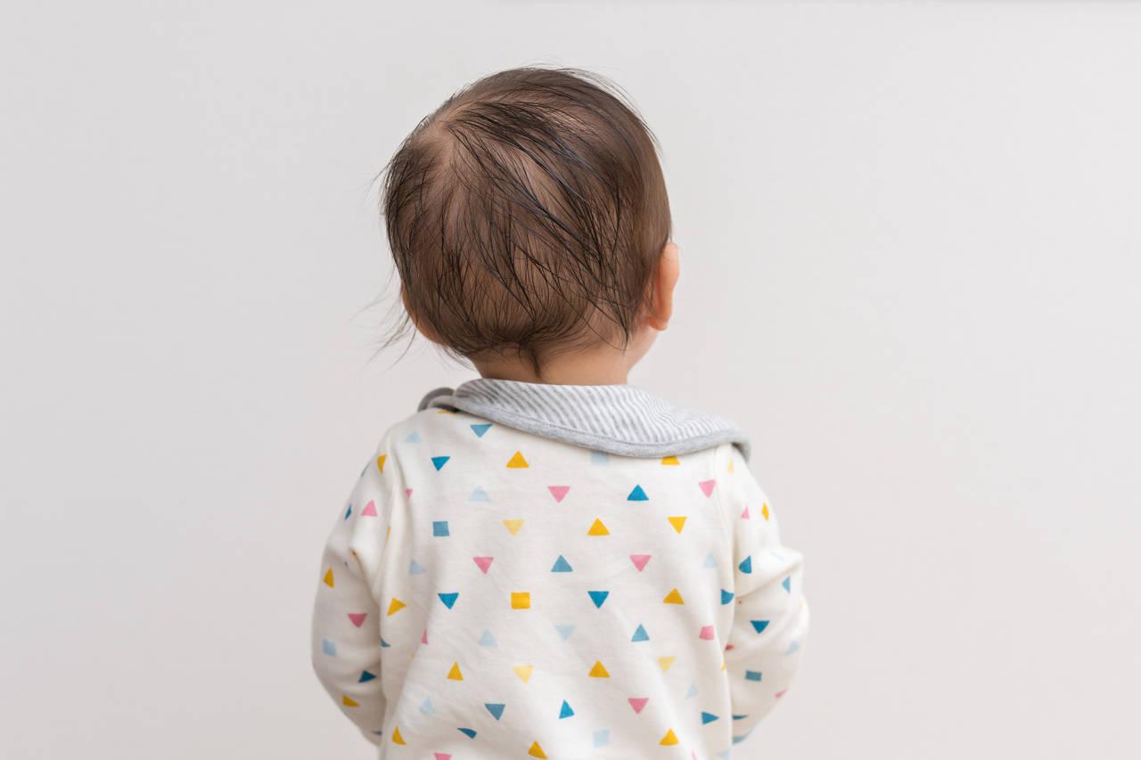 1歳児の髪の毛が薄いのは問題ない?髪の毛が薄い原因と対処法