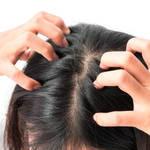 頭皮の皮脂は髪の毛を渡っていく…