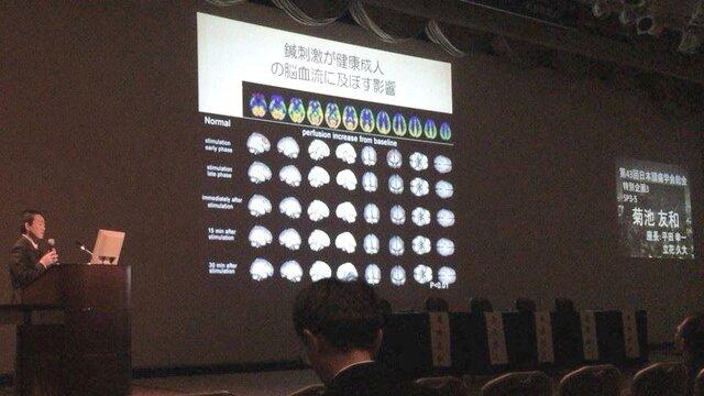 *日本頭痛学会シンポジウム