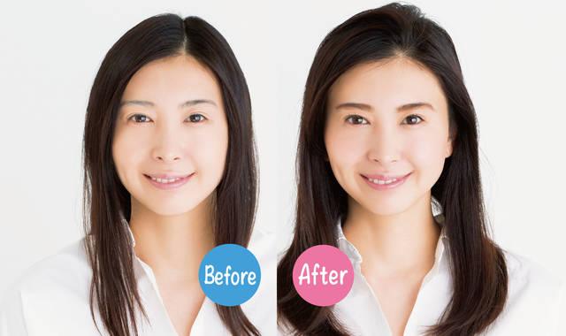 あなたの毛根は大丈夫? 薄毛が気になる女性に 抜け毛の原因と対策