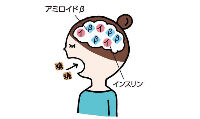 """""""糖質コントロール"""" で 脳をアンチエイジング!"""