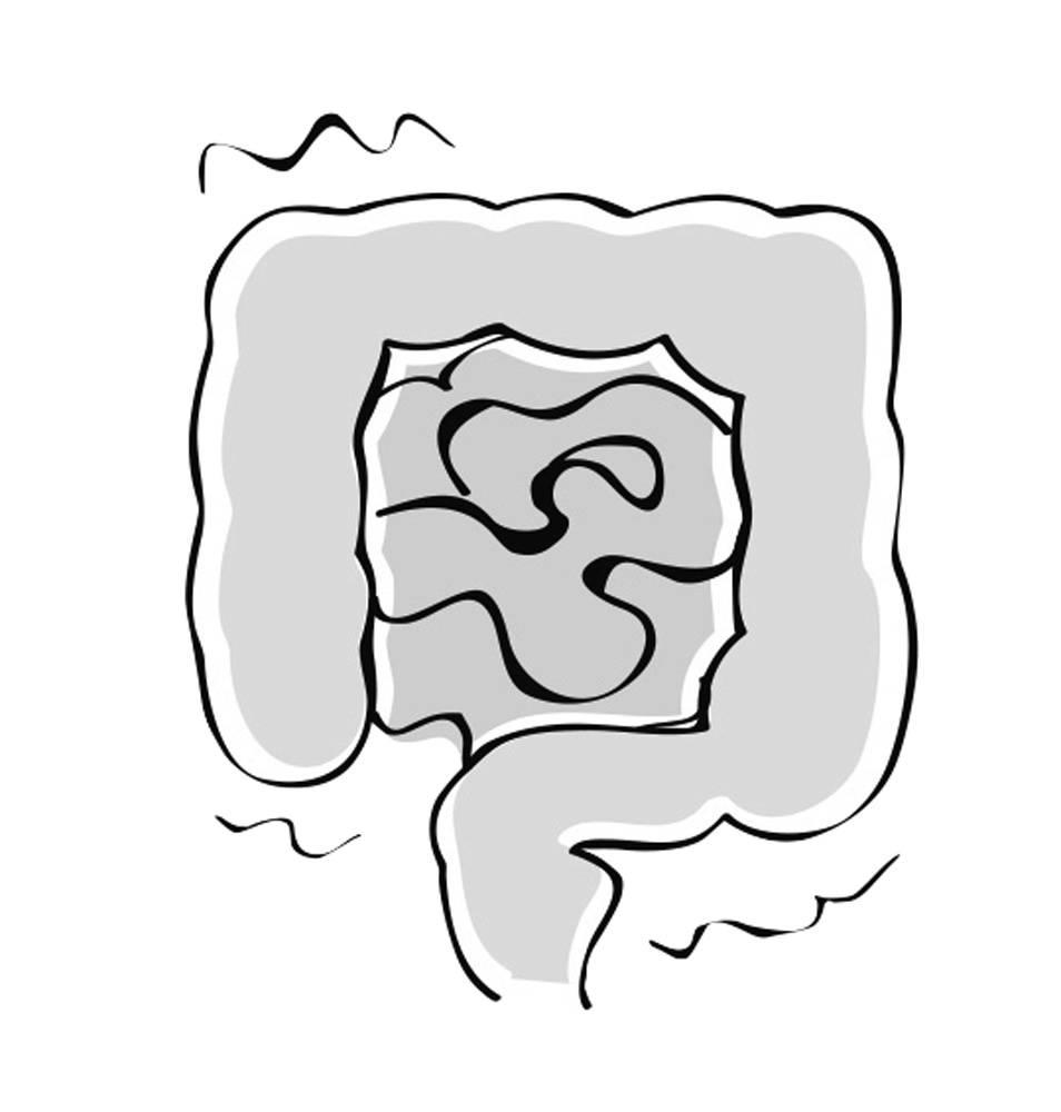 便秘解消「むくみ腸マッサージ」