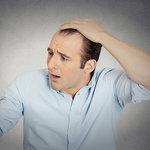 ストレスが多い現代人…抜け毛はもはや人ごとじゃない件