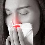 乾燥すると鼻血が出るっっ!! これって病気?