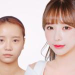 美しくなるための近道♩韓国人に人気の整形部位BEST⑦!価格は?痛みはある?